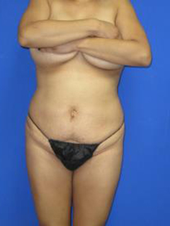 Avelar Tummy Tuck Before & After Patient #428