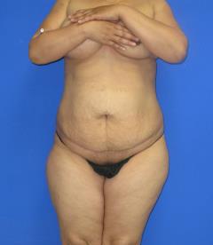 Brazilian Butt Lift Before & After Patient #476