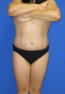 Avelar Tummy Tuck Before & After Patient #603