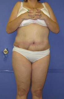 Avelar Tummy Tuck Before & After Patient #569