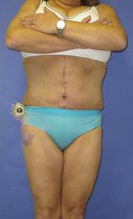 Fleur-de-Lis Tummy Tuck Before & After Patient #637