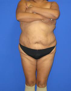 VASER Liposuction Before & After Patient #627