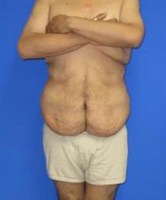 Fleur-de-Lis Tummy Tuck Before & After Patient #622