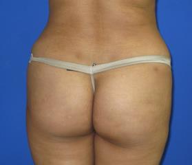 VASER Liposuction Before & After Patient #274