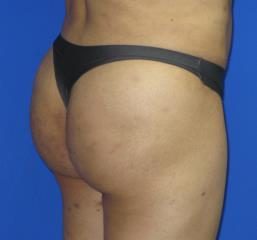 VASER Liposuction Before & After Patient #319