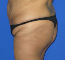 VASER Liposuction Before & After Patient #107