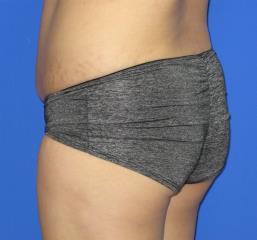VASER Liposuction Before & After Patient #87