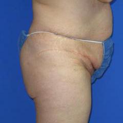 VASER Liposuction Before & After Patient #209