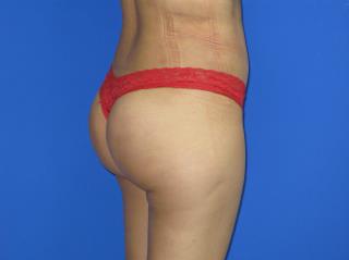 VASER Liposuction Before & After Patient #194