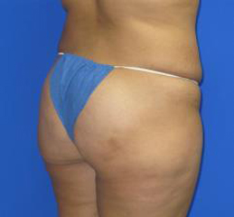 Liposuction Before & After Patient #204