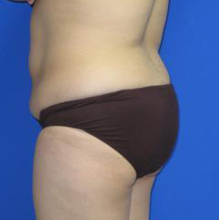 Liposuction Before & After Patient #250