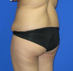 Liposuction Before & After Patient #253