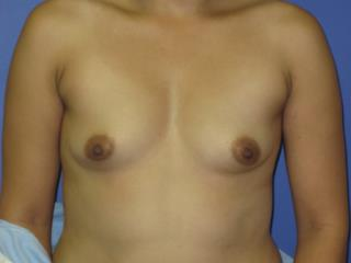 Breast Augmentation Before & After Patient #7496
