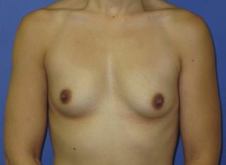 Breast Augmentation Before & After Patient #7528