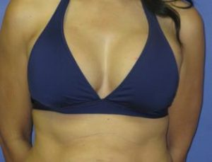 Breast Augmentation Before & After Patient #1267