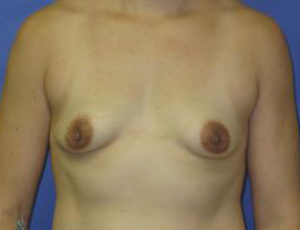 Breast Augmentation Before & After Patient #1278