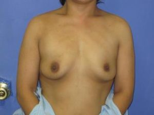 Breast Augmentation Before & After Patient #1306