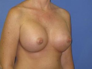 Breast Augmentation Before & After Patient #1320