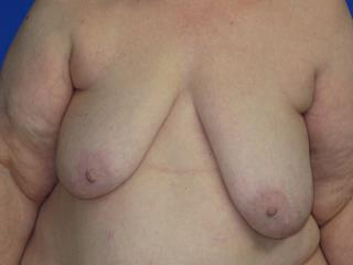 Breast Lift Before & After Patient #7351