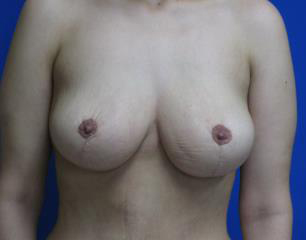 Breast Lift Before & After Patient #7356