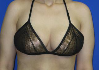 Breast Lift Before & After Patient #7361