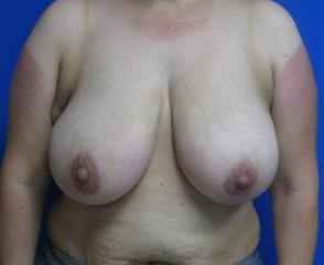 Breast Lift Before & After Patient #7364