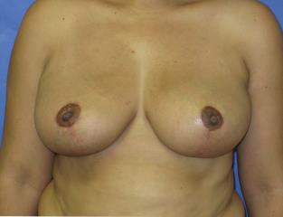 Breast Lift Before & After Patient #7369