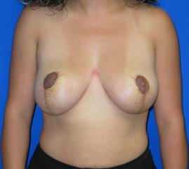 Breast Lift Before & After Patient #7397