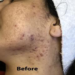 Micro-needling Before & After Patient #1016