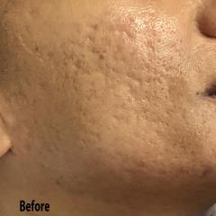 Micro-needling Before & After Patient #1026