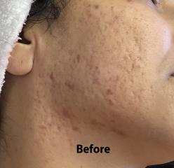 Micro-needling Before & After Patient #1032