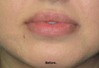 Lips Before & After Patient #692