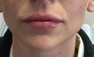 Lips Before & After Patient #720