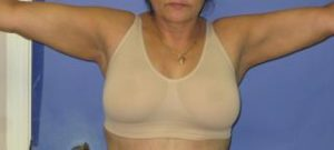 Liposuction Before & After Patient #1109
