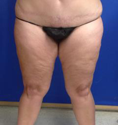 VASER Liposuction Before & After Patient #1116