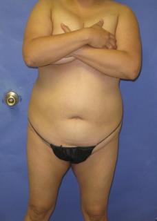VASER Liposuction Before & After Patient #1123