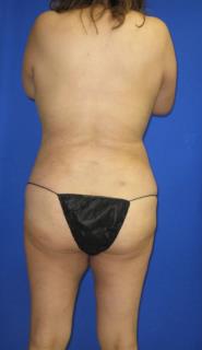 VASER Liposuction Before & After Patient #7181