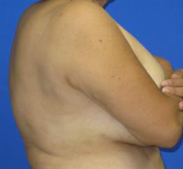 VASER Liposuction Before & After Patient #7228