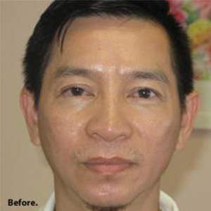 Non-Surgical Rhinoplasty Before & After Patient #814